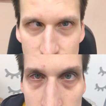 operace strabismu